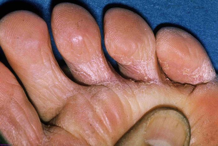 التهاب زخم پا : درمان سرکوب کننده در دیابت