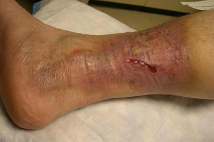 زخم پا چیست؟