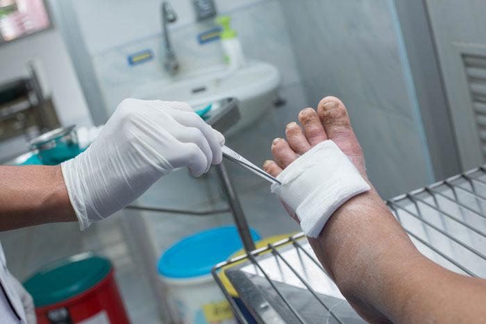 راههای درمان زخم مزمن