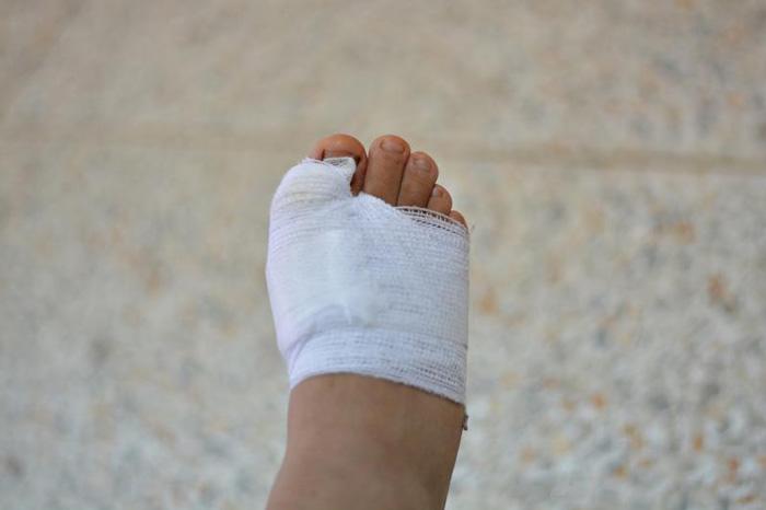 روند بهبود زخم در بیماران دیابتی چگونه است؟