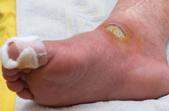 اهمیت درمان زخم دیابتی
