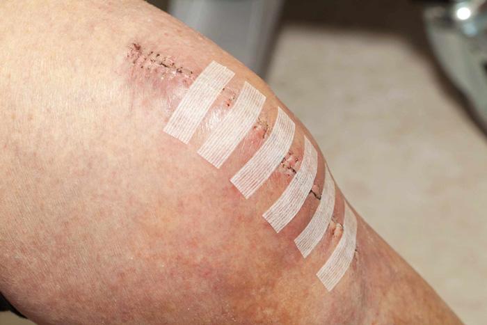 درمان زخم پس از جراحی