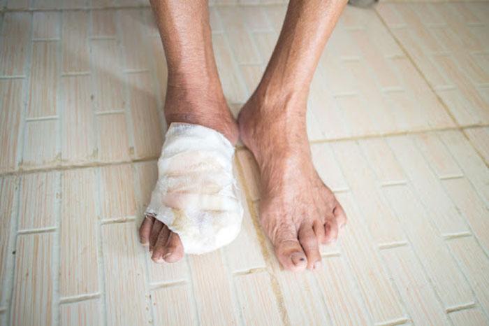 زخم پای دیابتی چیست؟