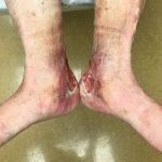 زخم وریدی - علائم و پیشگیری