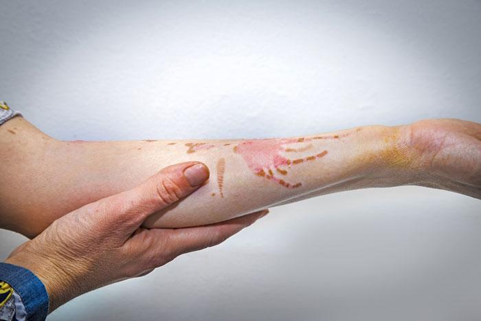 عفونت زخم سوختگی