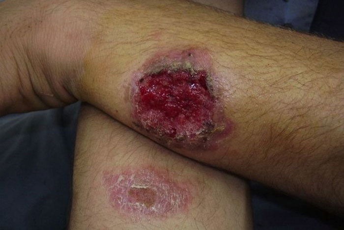 بیماری سالک چیست؟